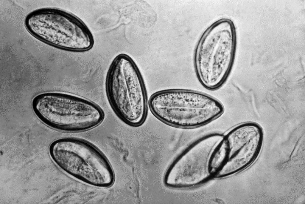 Helminti i paraziti Paraziti u crijevima kod djece, Paraziti u crijevima kod djece simptomi